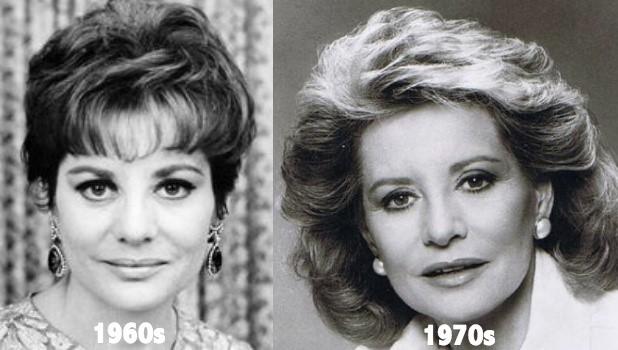 Barbara Walter Botox